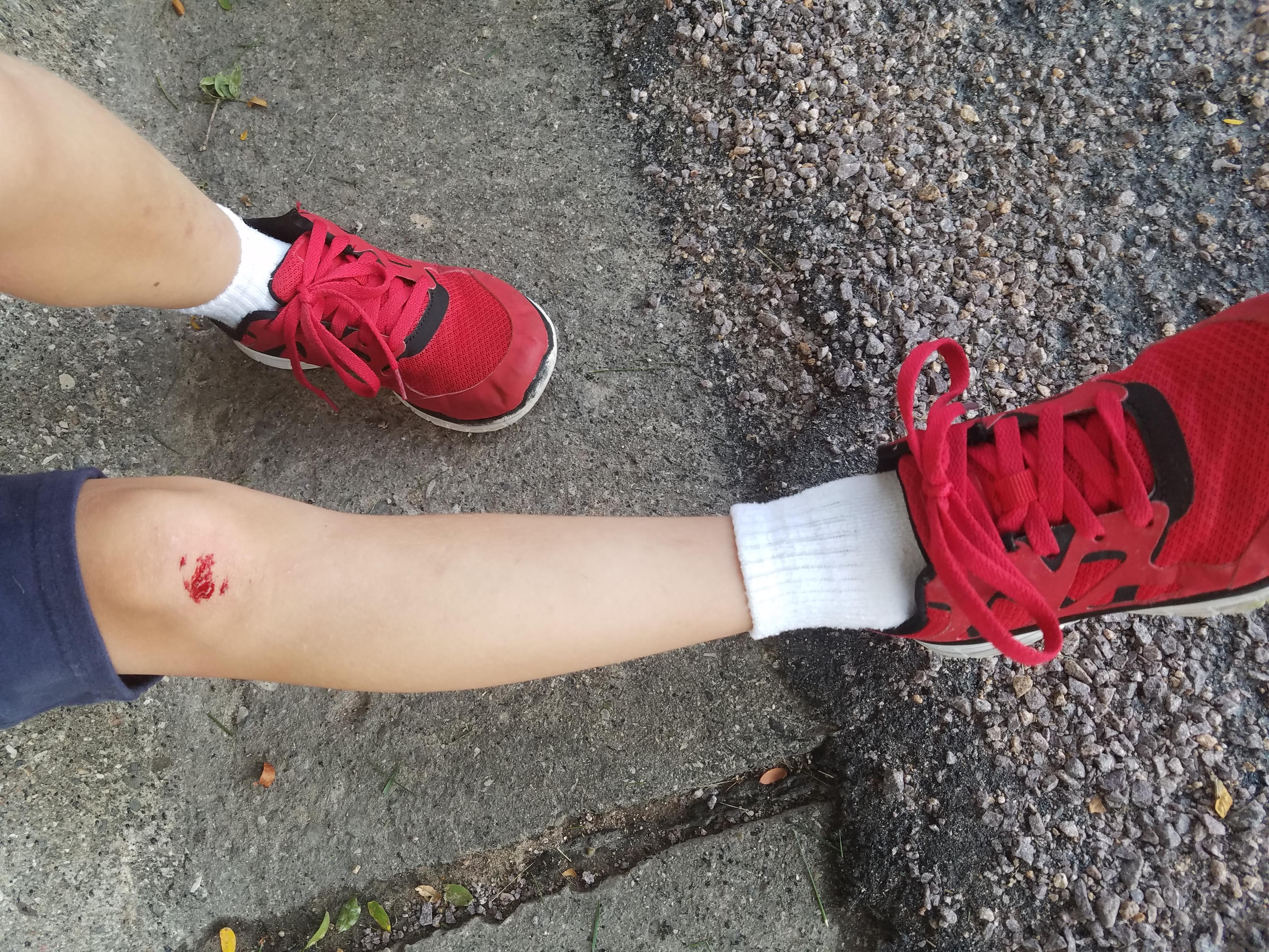 skinned-knee-6159.jpg